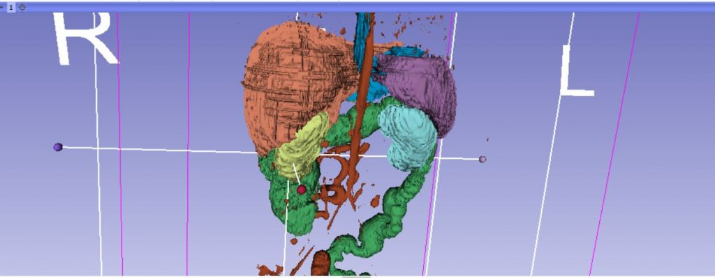 Segmenting the organs using 3DSlicer.